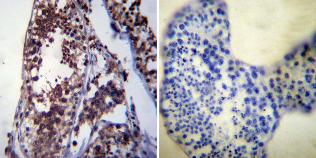 HSP70 Antibody (MA3-006) in Immunohistochemistry