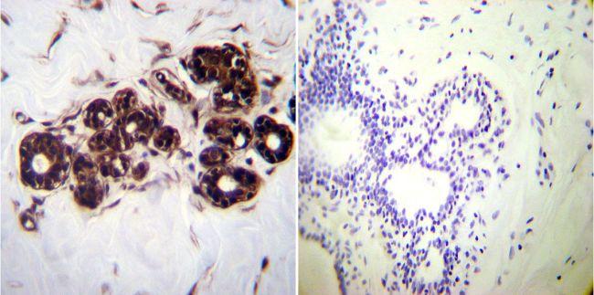 HSP70 Monoclonal Antibody (2A4)