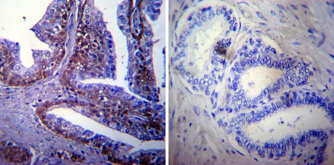 HSP70 Antibody (MA3-009) in Immunohistochemistry