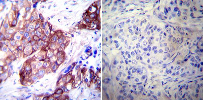 HSP27 Antibody (MA3-015) in Immunohistochemistry