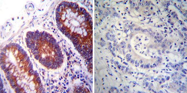 PDI Monoclonal Antibody (RL90)