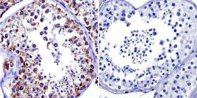 mtHSP70 Antibody (MA3-028) in Immunohistochemistry