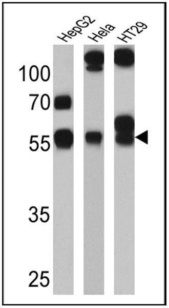 CYP3A7 Antibody (MA3-034) in Western Blot