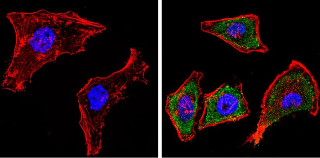 CYP1A1/CYP1A2 Antibody (MA3-036) in Immunofluorescence