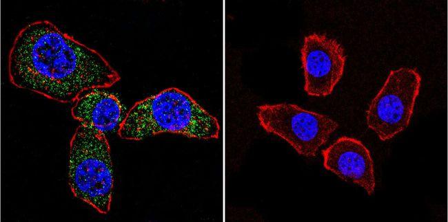 Acetylcholinesterase Antibody (MA3-041)