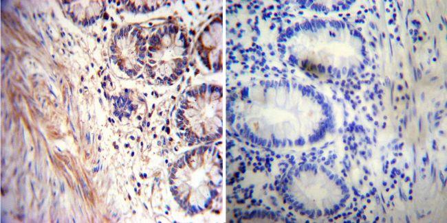 Acetylcholinesterase Antibody (MA3-042) in Immunohistochemistry
