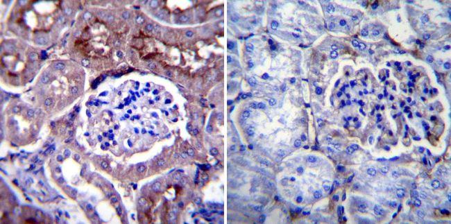 CHRNA1 Antibody (MA3-043) in Immunohistochemistry