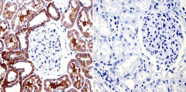 CHRM2 Antibody (MA3-044) in Immunohistochemistry