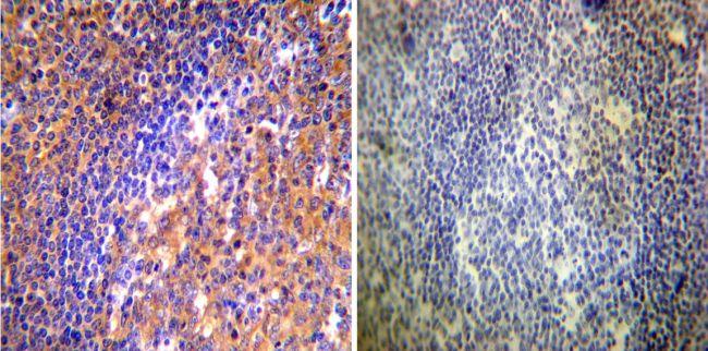 ARF1/ARF3/ARF5/ARF6 Antibody (MA3-060) in Immunohistochemistry