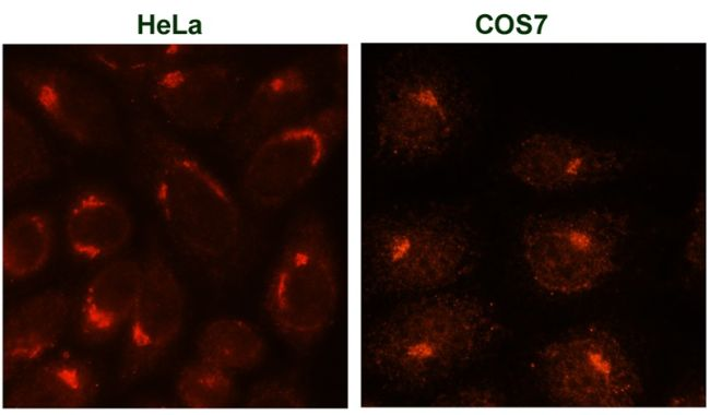 Trans-Golgi Network 38 Antibody (MA3-063) in Immunofluorescence