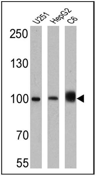 Importin beta-1 Antibody (MA3-070) in Western Blot