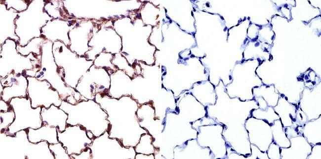 Caveolin 1 Antibody (MA3-600) in Immunohistochemistry