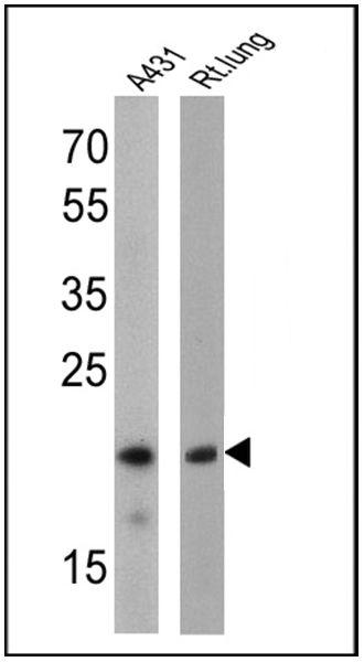 Caveolin 1 Antibody (MA3-600) in Western Blot