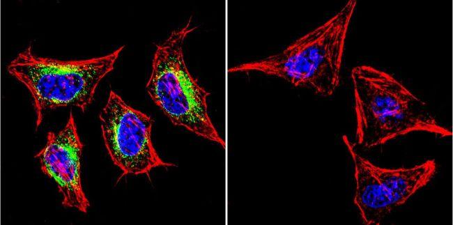 SERCA2 ATPase Antibody (MA3-910) in Immunofluorescence