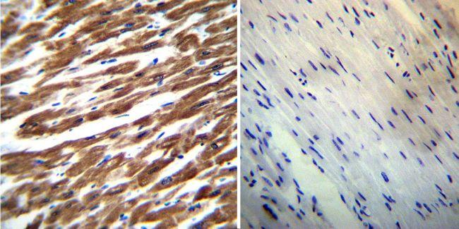 SERCA2 ATPase Antibody (MA3-910) in Immunohistochemistry