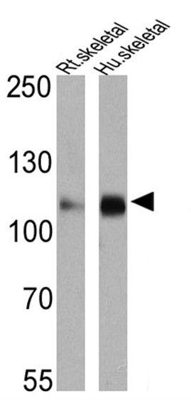 SERCA2 ATPase Antibody (MA3-910) in Western Blot