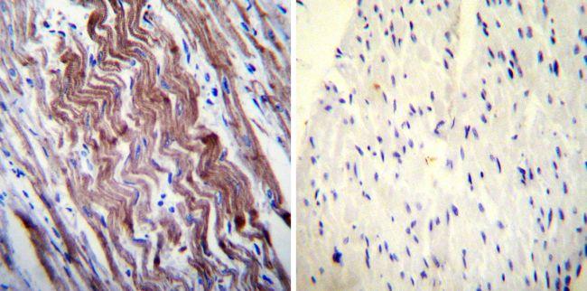 SERCA1 ATPase Antibody (MA3-912) in Immunohistochemistry