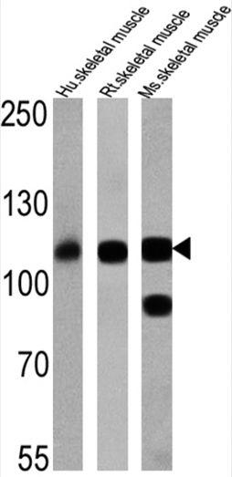 SERCA1 ATPase Antibody (MA3-912) in Western Blot