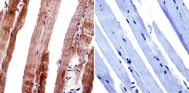 CACNA2D1 Antibody (MA3-921) in Immunohistochemistry