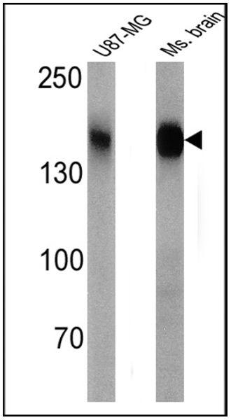 CACNA2D1 Antibody (MA3-921) in Western Blot