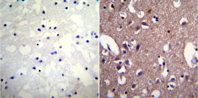 ATP1A1 Antibody (MA3-924) in Immunohistochemistry