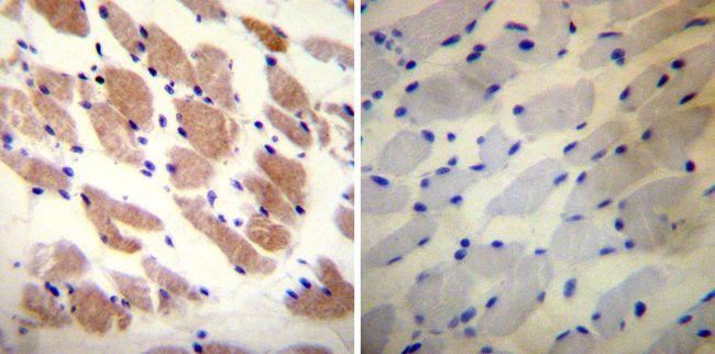RyR1 Antibody (MA3-925) in Immunohistochemistry