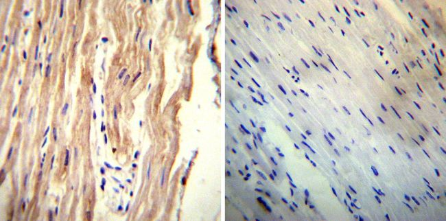 Sodium/Calcium Exchanger Antibody (MA3-926) in Immunohistochemistry