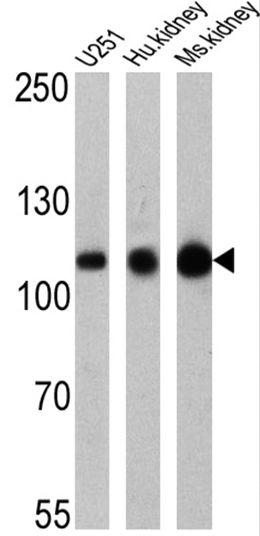 ATP1A1 Antibody (MA3-928) in Western Blot