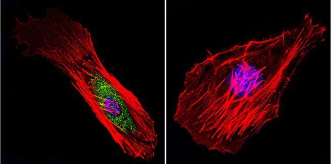Mu-Calpain Antibody (MA3-940) in Immunofluorescence