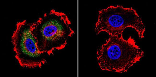 Mu-Calpain Antibody (MA3-941)