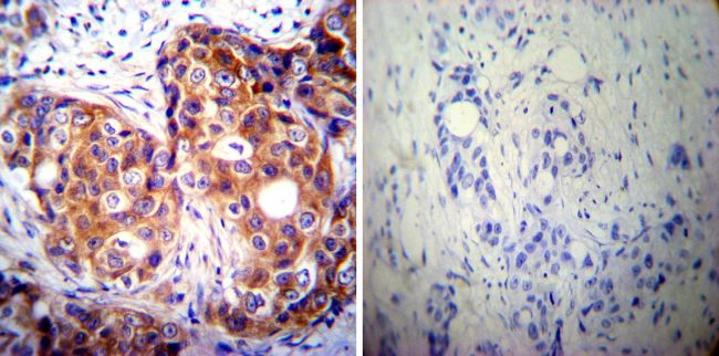 Calpastatin Antibody (MA3-944) in Immunohistochemistry