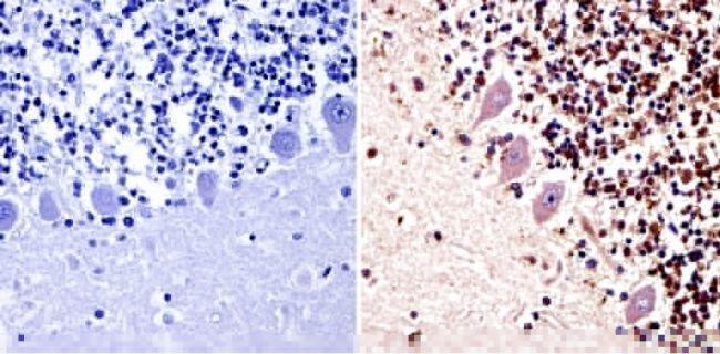 PARP Antibody (MA3-950) in Immunohistochemistry (Paraffin)