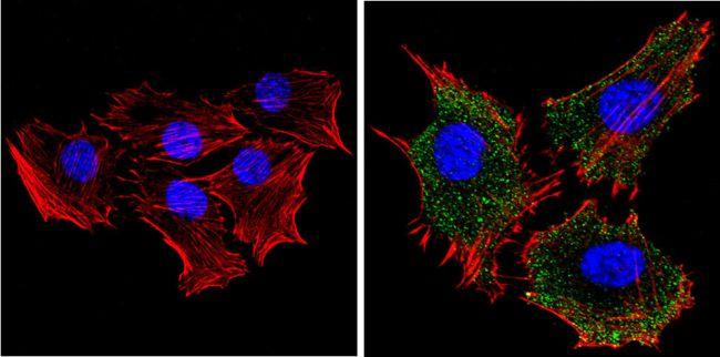 RASA1 Antibody (MA4-001) in Immunofluorescence