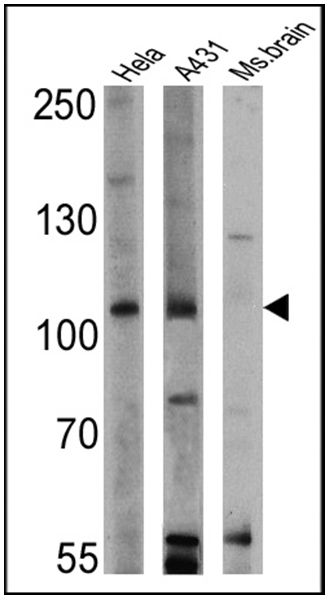 RASA1 Antibody (MA4-001) in Western Blot