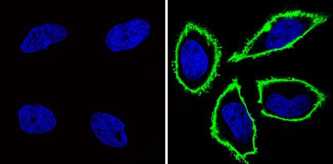 CD44 Antibody (MA4400) in Immunofluorescence