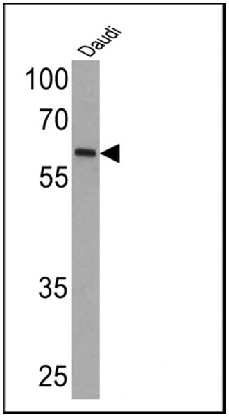 Human IgA (Alpha heavy chain) Secondary Antibody (MA5-11208) in Western Blot