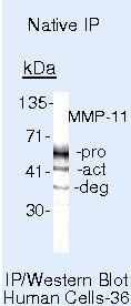 MMP11 Antibody (MA5-11234) in Immunoprecipitation