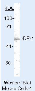 DP1 Antibody (MA5-11268) in Western Blot