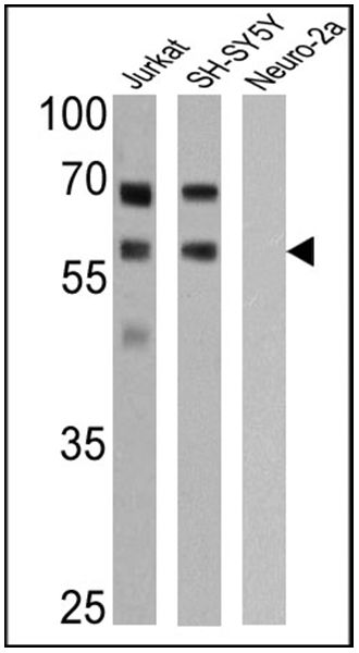 p57 Kip2 Antibody (MA5-11309) in Western Blot