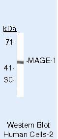 MAGE1 Antibody (MA5-11335) in Western Blot
