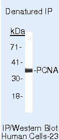 PCNA Antibody (MA5-11358) in Immunoprecipitation