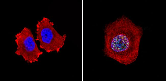 Rb Antibody (MA5-11387) in Immunofluorescence