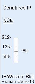 Rb Antibody (MA5-11387) in Immunoprecipitation