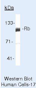 Rb Antibody (MA5-11387) in Western Blot