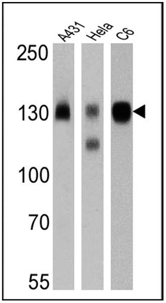 ITGB1 Antibody (MA5-11429) in Western Blot
