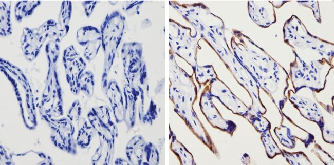 Transferrin Receptor Antibody (MA5-11441)
