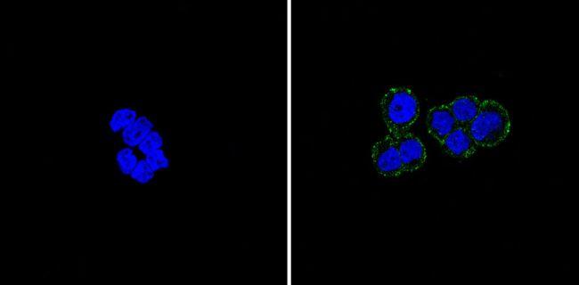 E-cadherin Antibody (MA5-11496) in Immunofluorescence