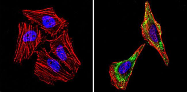 Smooth Muscle Actin Antibody (MA5-11547) in Immunofluorescence