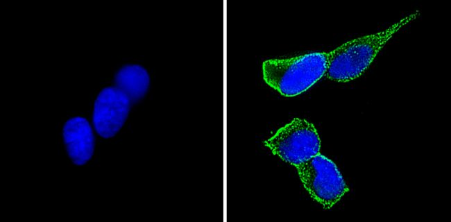 CD56 Antibody (MA5-11563)