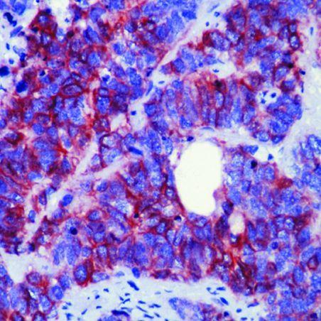 CD56 Antibody (MA5-11563) in Immunohistochemistry